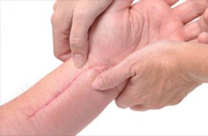 Biomax Plus Skin Repair and Scar Oil for Scars