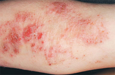 Eczema Inside the arm